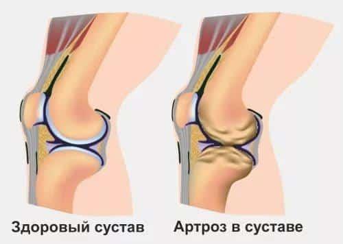 артропатия коленного сустава