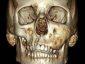 Как лечить фиброзную дисплазию