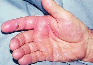 Что такое теносиновит сухожилий и как его лечить