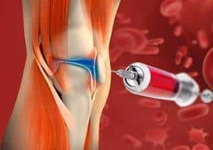Как лечат суставы плазмолифтингом