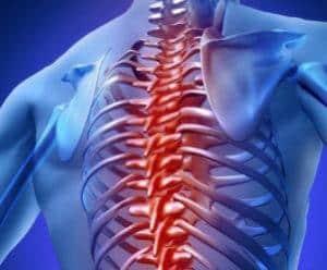 Что такое отек костного мозга позвоночника