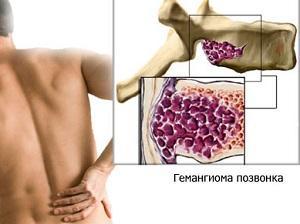 Что такое гемангиома позвоночника и как ее лечат