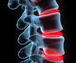 Как лечить артроз дугоотросчатых суставов