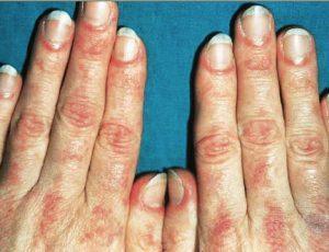 Как лечить дерматомиозит