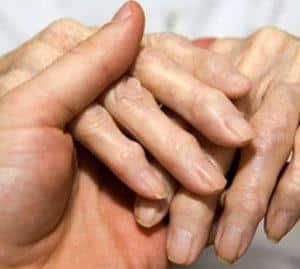 Как лечить полиостеоартроз суставов