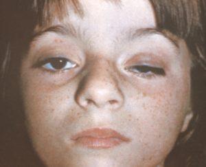 Как лечить синдром Бернара-Горнера