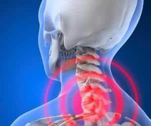 Как применять Комбилипен при остеохондрозе