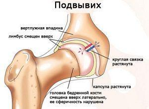 Как вправить тазобедренный сустав