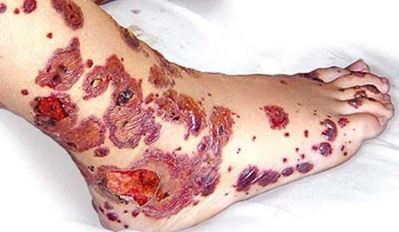 Как лечить болезнь Шенлейна-Геноха