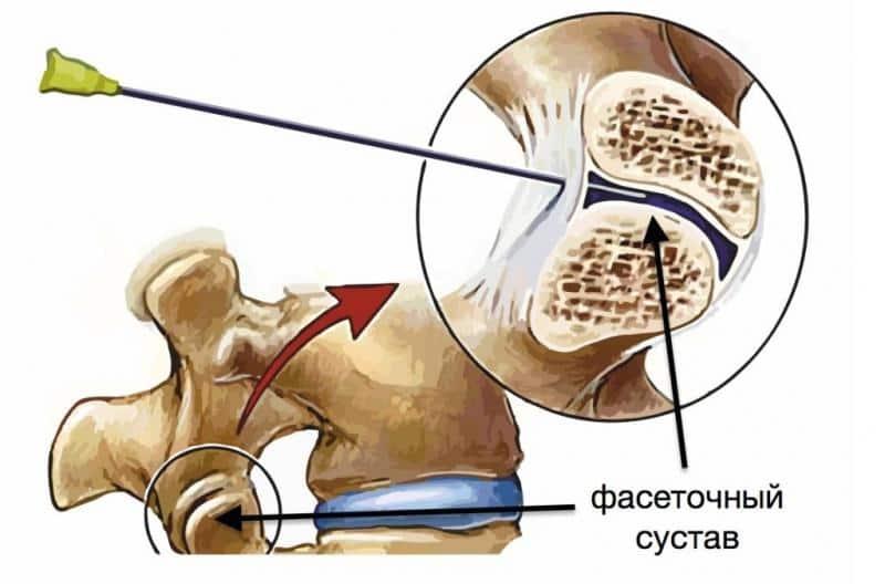 Как лечить фасеточный синдром