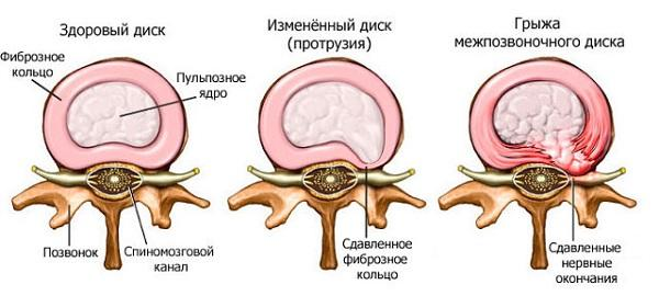 Что такое фораминальная грыжа межпозвоночного диска