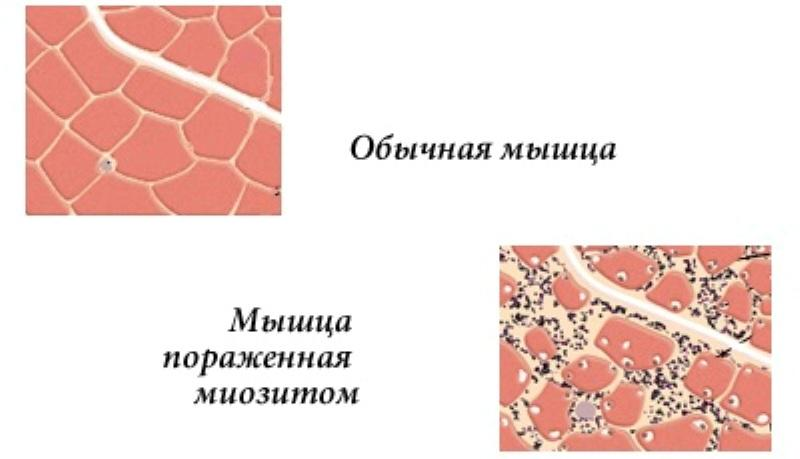 Пораженные мышцы
