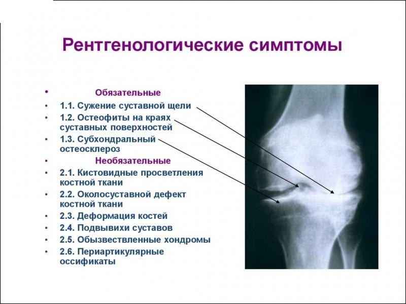 Субхондральный склероза коленного сустава тугоподвижность суставов пальцев ног