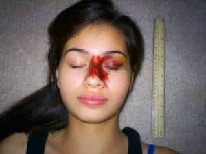 Как лечат перелом носа