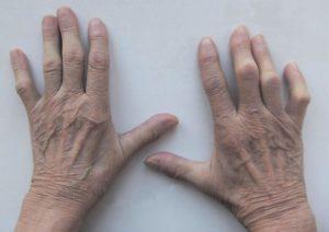 Что такое полимиозит и как его лечат