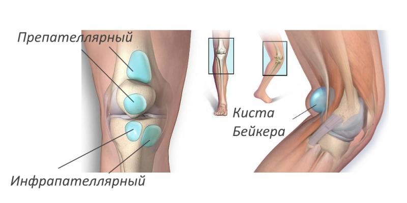 Как лечить препателлярный бурсит коленного сустава