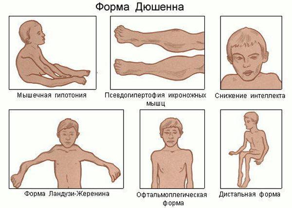Как лечить синдром Дюшенна