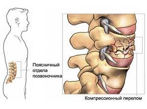 Что такое компрессионный перелом позвоночника и как он лечится