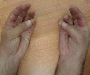 Как лечат синдром Зудека