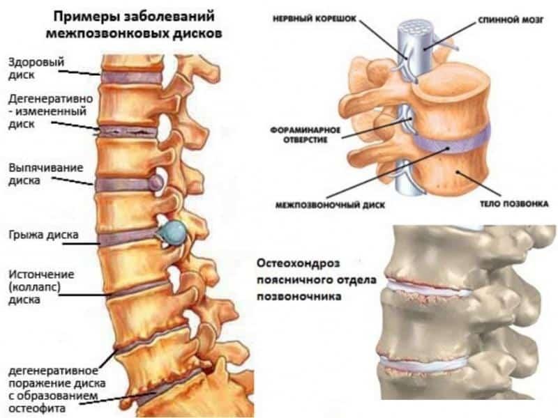 Что такое спондилодисцит позвоночника и как его лечат