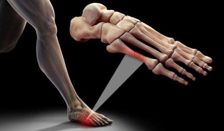 Перелом кости ноги человека