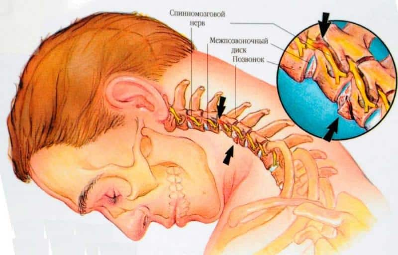 Что такое субхондральный склероз и как его лечить