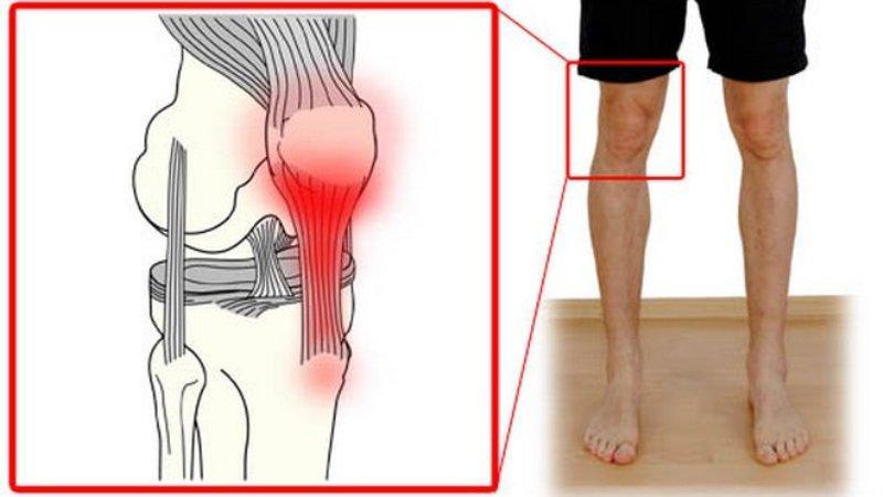 Как лечить тендиноз коленного и тазобедренного суставов