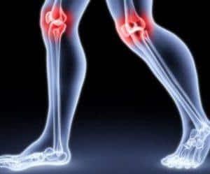 Как лечить вальгусную деформацию коленных суставов