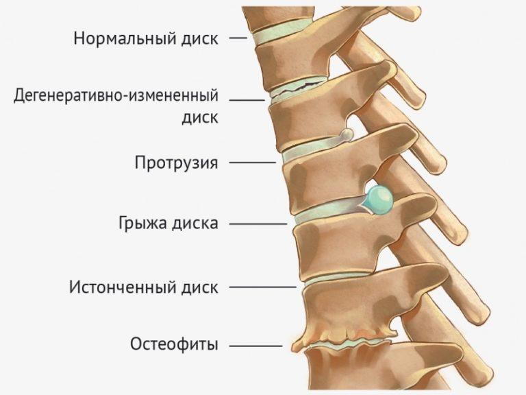 Остеохондроз протрузии дисков лечение