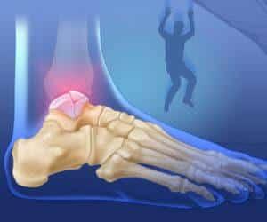 Как лечат перелом таранной кости