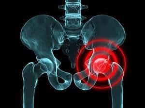 Как лечить болезнь Пертеса тазобедренного сустава