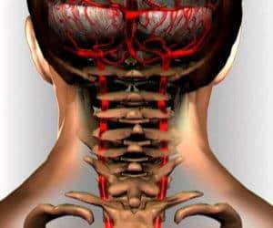 Как лечить синдром позвоночной артерии