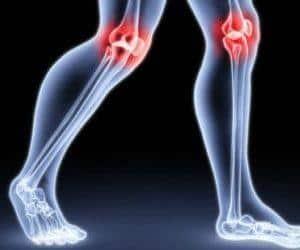 Как лечить менископатию коленного сустава