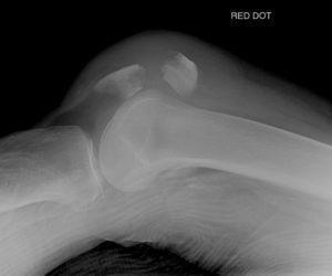 Как лечить перелом коленной чашечки