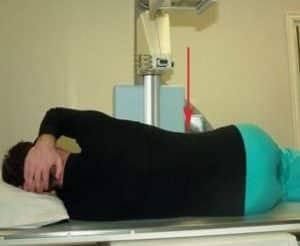 Как лечить синдром Титце