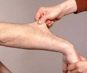 Как лечить синдром дисплазии соединительной ткани