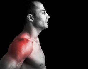 Адгезивный капсулит плеча симптомы причины стадии и особенности лечения