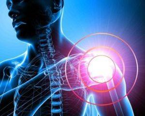Как лечить синдром замороженного плеча