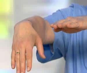 Как лечить стилоидит лучезапястного сустава