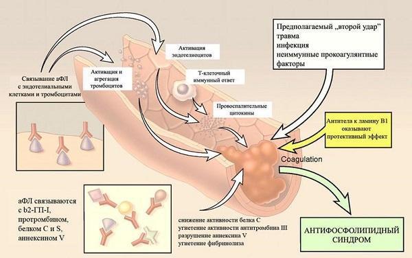 Что такое антифосфолипидный синдром и как его лечить