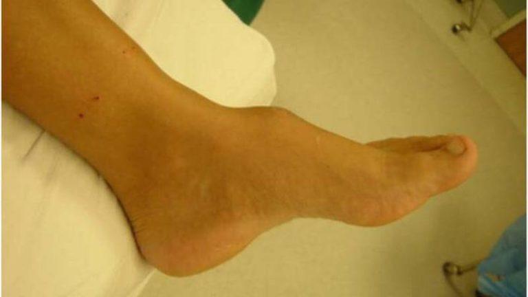 Костные наросты на ногах лечение