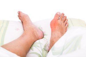 Можно ли принимать одновременно колхицин и аллопуринол для лечения подагры