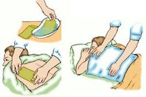 Как применять горчичники для лечения остеохондроза