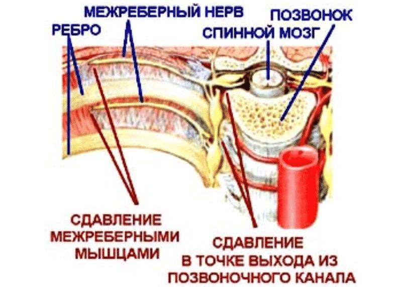 Синдром торакалгии
