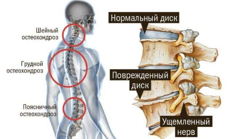 Схема лечения грудного остеохондроза