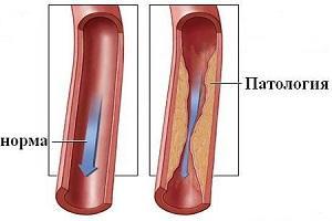Что такое гипоплазия позвоночной артерии