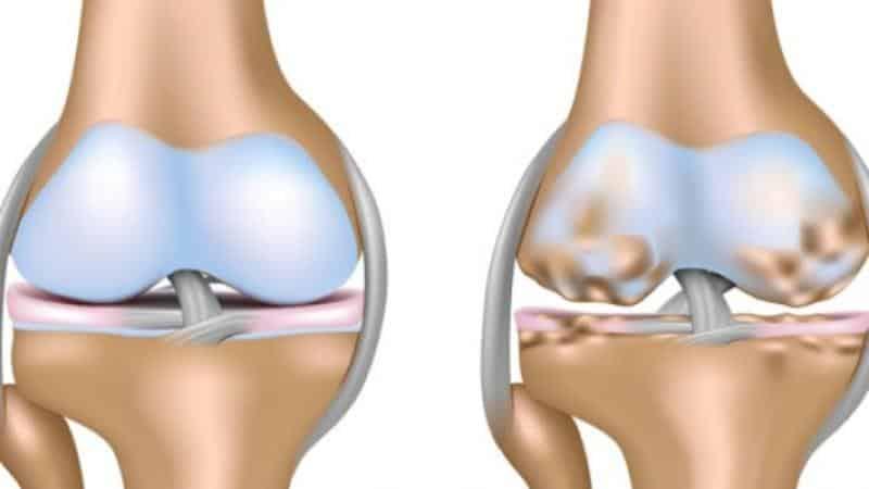 Как лечить остеоартроз периферических суставов