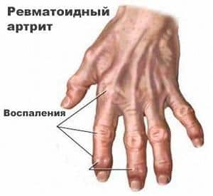 Как принимать Плаквенил при ревматоидном артрите