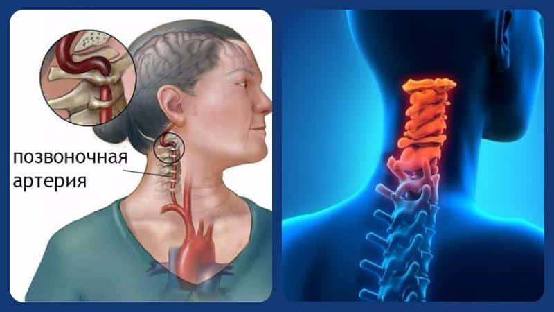 Стеноз позвоночной артерии