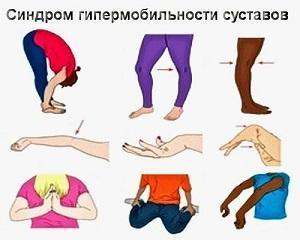 Как лечить синдром гипермобильности суставов